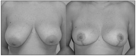 Fig. 1. Frontal pre and post operative view, asymmetry grade A (74 g)