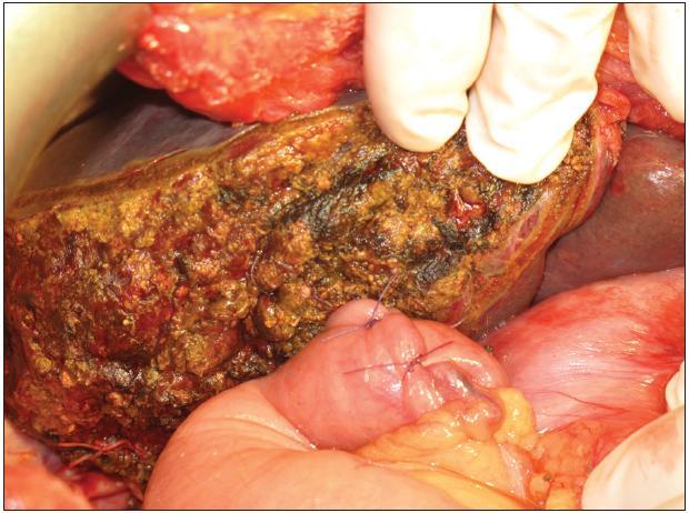 Resekční plocha po pravostranné rozšířené hepatektomii s našitím exkludované jejunální kličky na levý hepatikus Fig. 10: Resection surface after extended right hepatectomy and anastomosis of jejunal loop with left hepatic duct