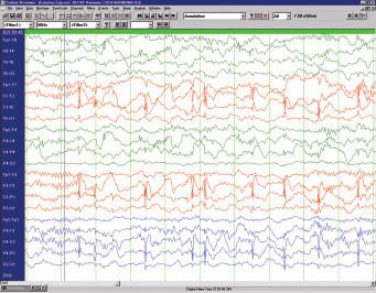 Benigní epilepsie s rolandickými hroty – interiktální EEG u 8letého chlapce.