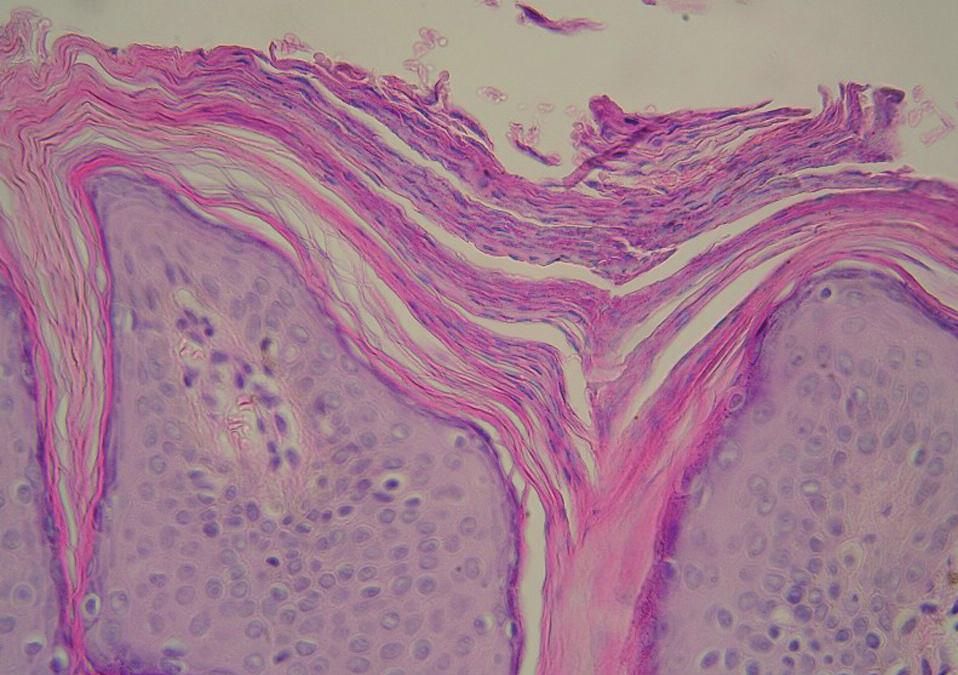 Histologie – případ 3: granulární parakeratóza (HE, zvětšení 400krát).