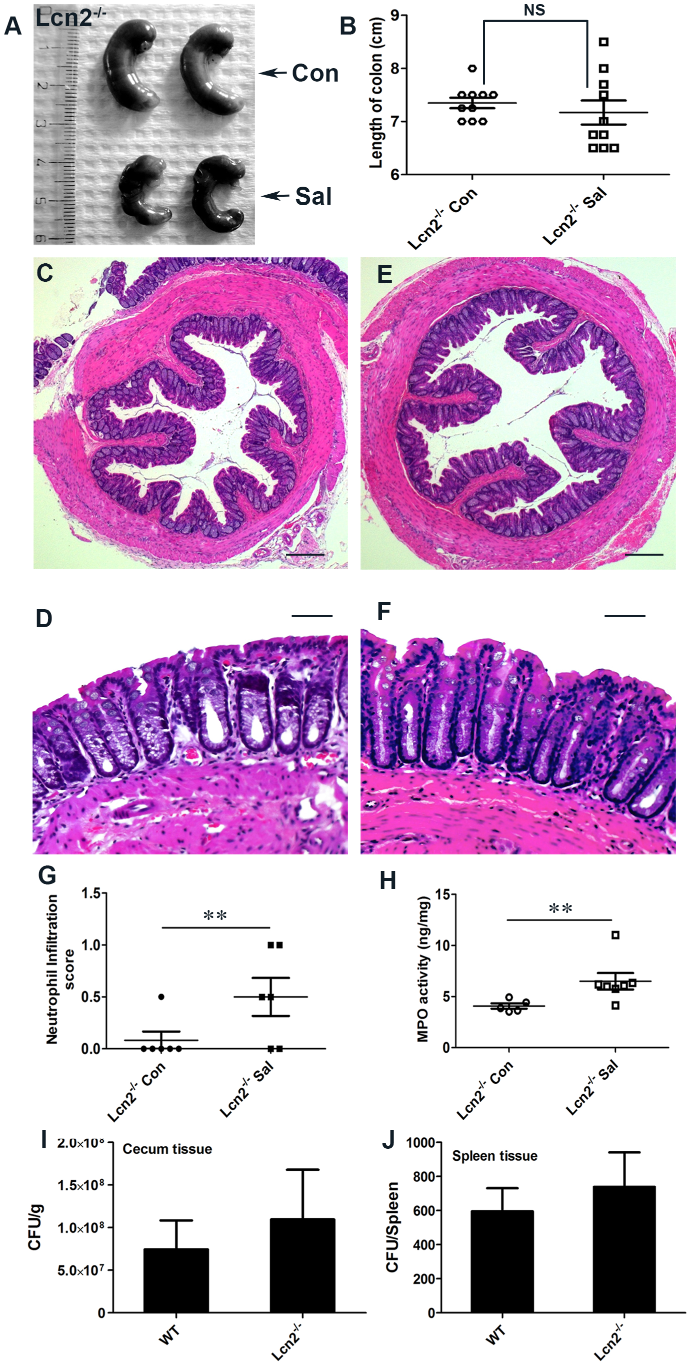 Lcn2<sup>−/−</sup> mice are markedly protected from <i>S.</i> Typhimurium-induced colitis.