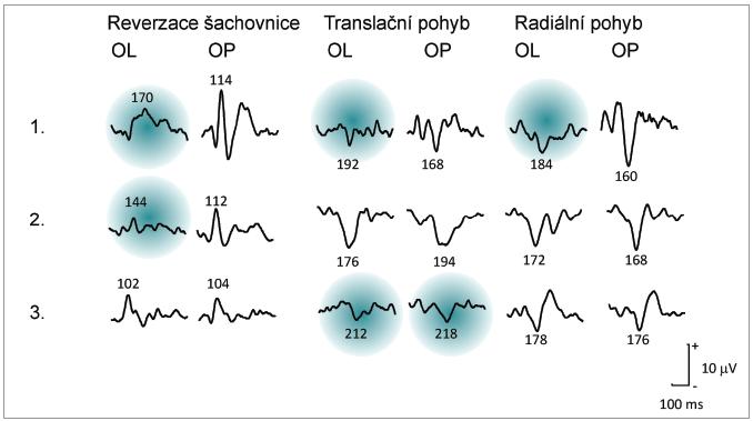 Příklady nálezů monokulárních VEPs u souboru 20 pacientů vyšetřených během 1. ataky ON. 75 % pacientů mělo prodloužené latence při stimulaci R-VEPs i M-VEPs (1.), 15 % pacientů vykázalo postižení omezené pouze na R-VEPs (2.) a u 10 % pacientů jsme zaznamenali již jen prodloužení latencí při stimulaci pohybem (3.). Latence převyšující limit = průměr + 2,5 SD jsou označeny zeleným pozadím.