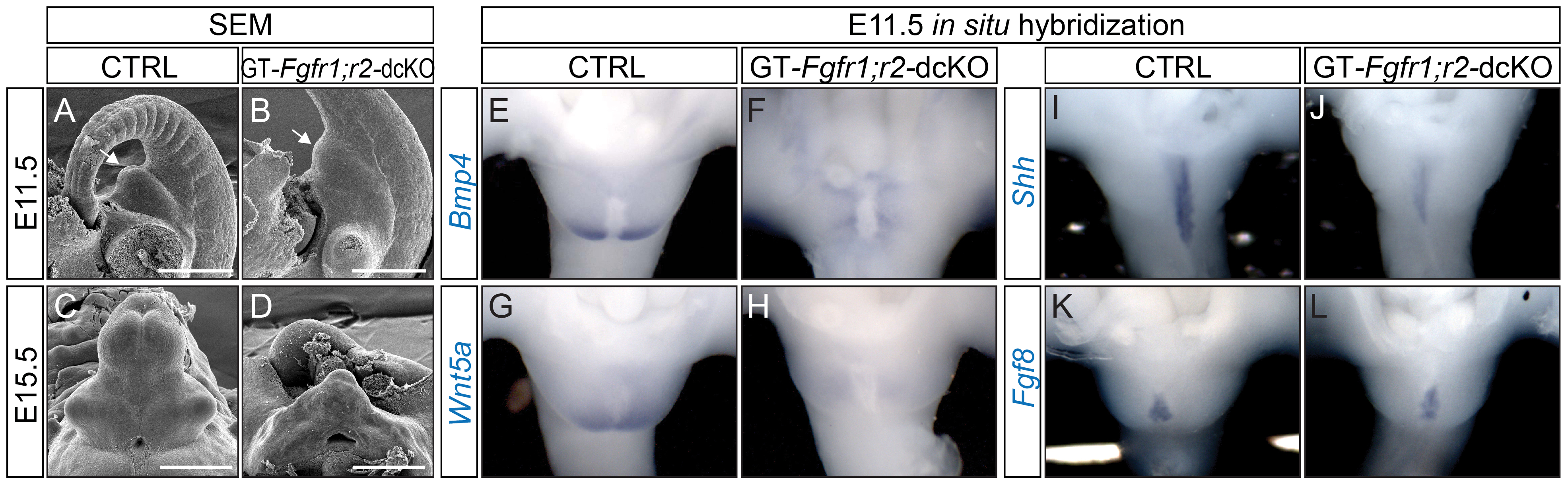 Defective GT development in GT-<i>Fgfr1</i>;<i>r2</i>-dcKO embryos.