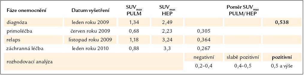 Vývoj změn poměrné aktivity SUV<sub>max</sub> PULM/ SUV<sub>max</sub> HEP, která dokládá aktivitu LCH v plicním parenchymu, a příslušná rozhodovací analýza.