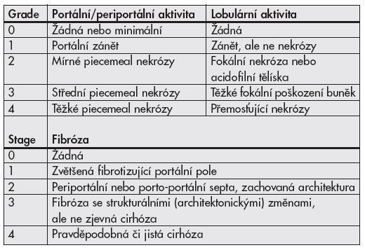Klasifikační schéma chronických hepatitid <b>podle Scheuera.</b>