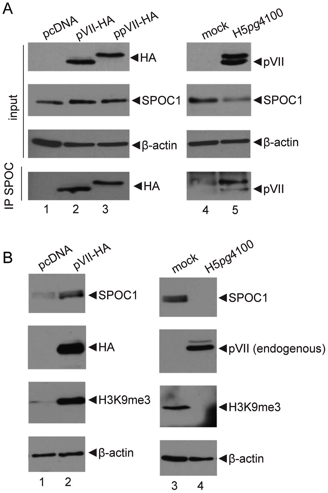 SPOC1 functionally cooperates with Ad core protein pVII.