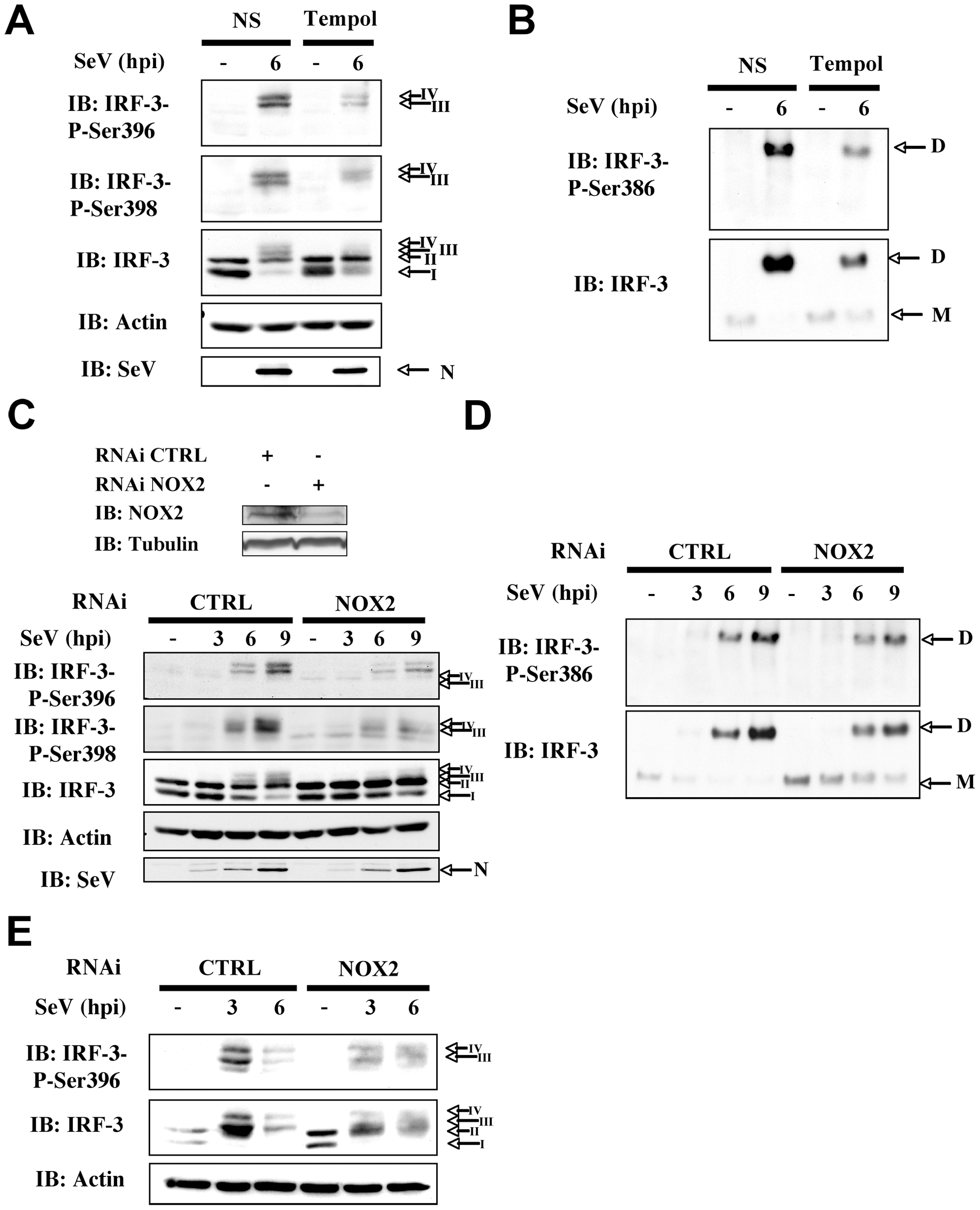Knockdown of NOX2 expression impairs SeV-induced C-terminal IRF-3 phosphorylation and dimerization in A549 and human primary NHBE.