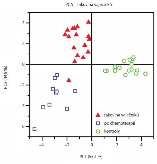 PCA statistické vyhodnocení glykanových map získaných po separaci kapilární elektroforézou umožňuje rozdělení vzorků do odlišných kohortních skupin (stejné skupiny pacientek a kontrol jako u obr. 3). Převzato z [13].