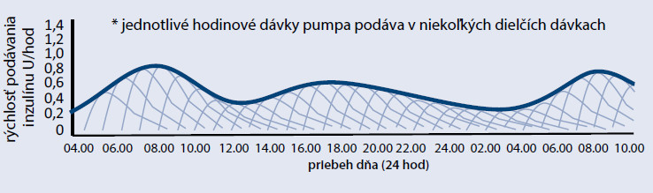 Graf 1b Substitúcia bazálnej potreby inzulínu pomocou inzulínovej pumpy