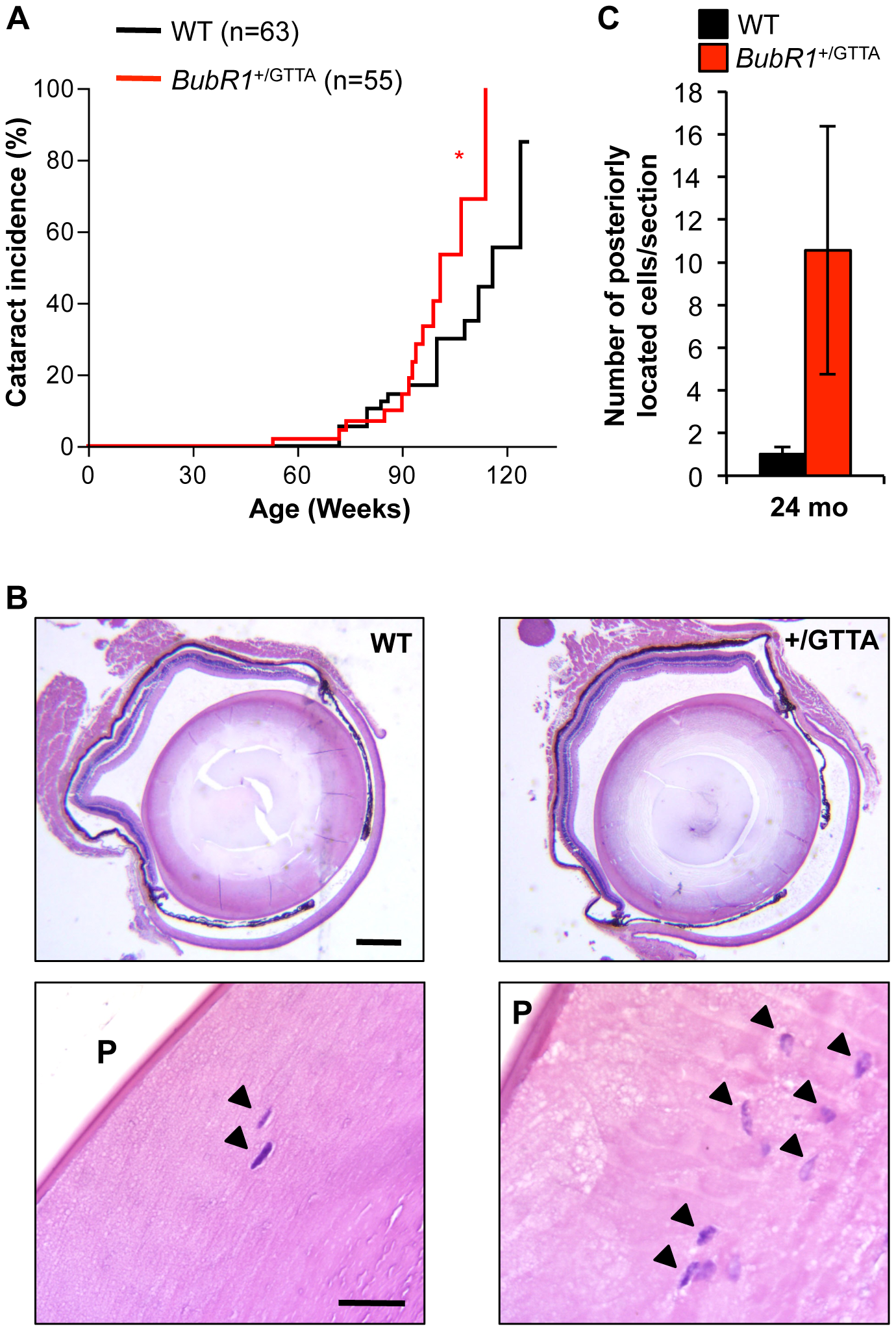 Cataract formation is accelerated in <i>BubR1</i><sup>+/GTTA</sup> mice.