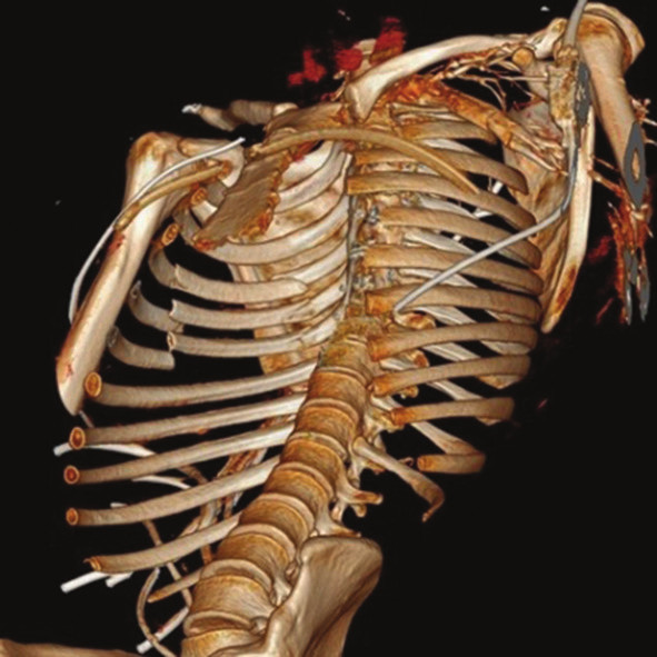 3D rekonstrukce Fig. 5: 3D CT reconstruction