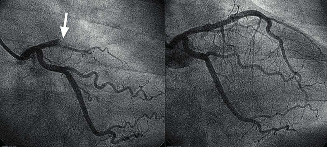 Angioplastika jedné z magistrálních tepen zásobujících srdeční sval (ramus interventricularis anterior) Při nástřiku kontrastní látkou je patrná obstrukce toku krve (šipka). Po nafouknutí balonku a implantaci stentu je překážka odstraněna a průtok krve v celém rozsahu obnoven.