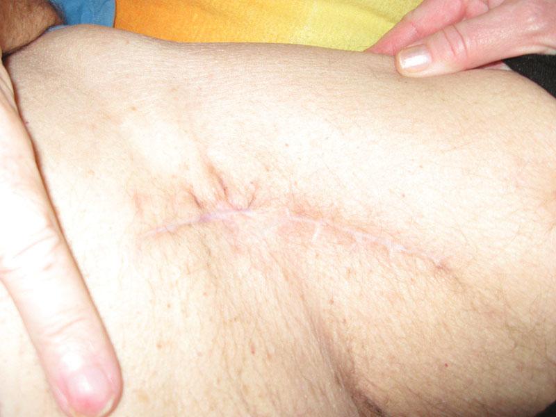Stav po zhojení Fig. 10. Result after the wound healing