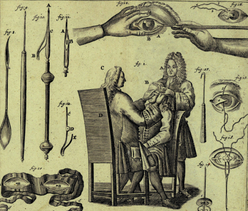 Oční operace a instrumentárium používané v 18. století. (Z knihy: Lorenz Heister, Chirurgie, vydáno v Norimberku 1731)