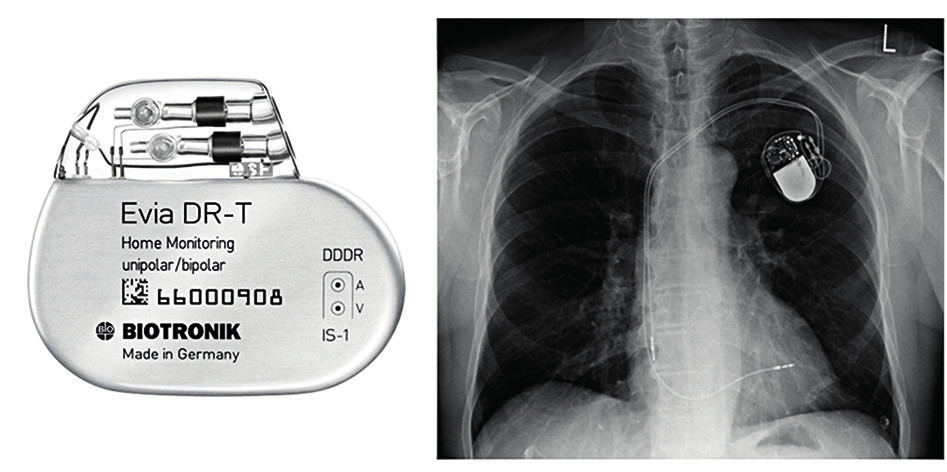 Příklad dvoudutinového kardiostimulátoru a prostý RTG snímek hrudníku zachycující voperovaný přístroj a dvě elektrody (jedna v pravé síni, druhá v pravé komoře)