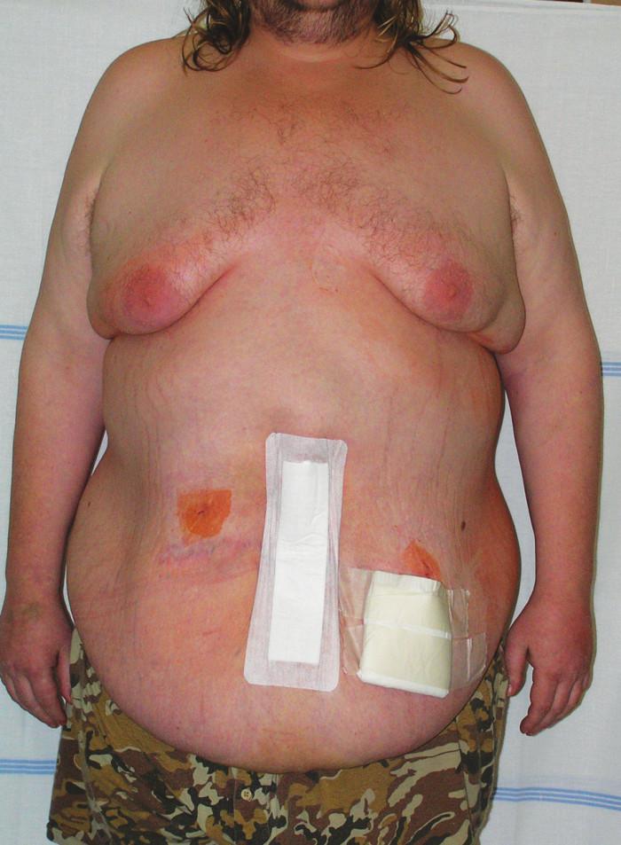 Stav druhý den po operaci Fig. 9. Second day after operation