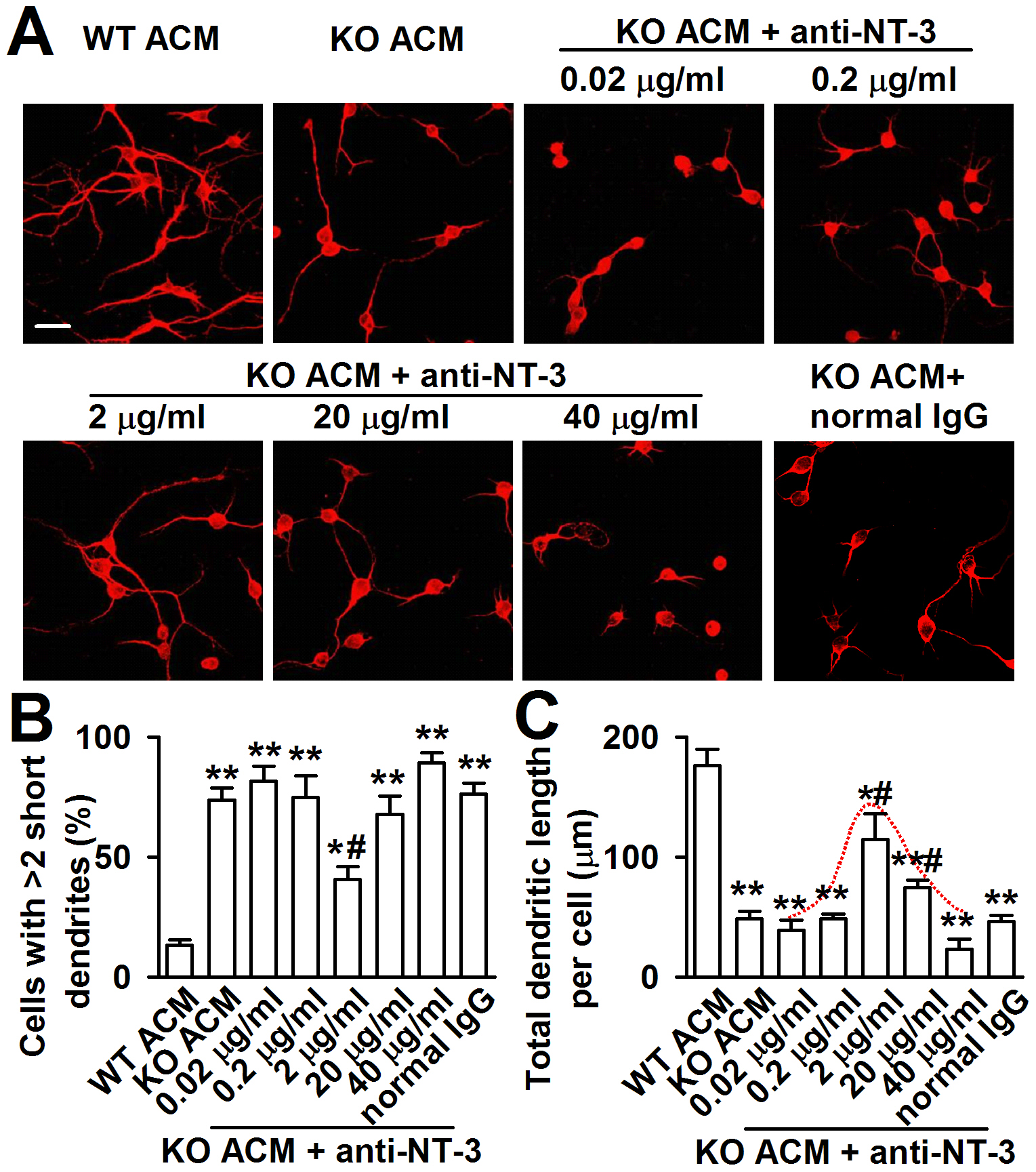 Effects of NT-3 neutralizing antibody on the neuronal dendritic growth.