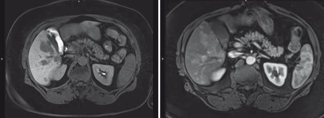 Velikostní a početní progrese jaterního postižení dle MRI.