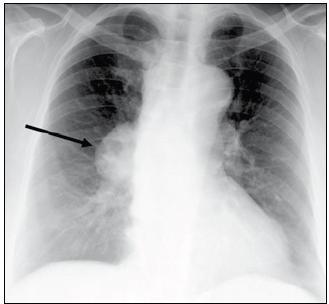 RTG hrudníku: ovoidní zastínění v oblasti pravého plicního hilu o velikosti 57 × 39 mm a rozšíření horního mediastina. CT hrudníku viz obr. 6a a 6b (kazuistika 2).