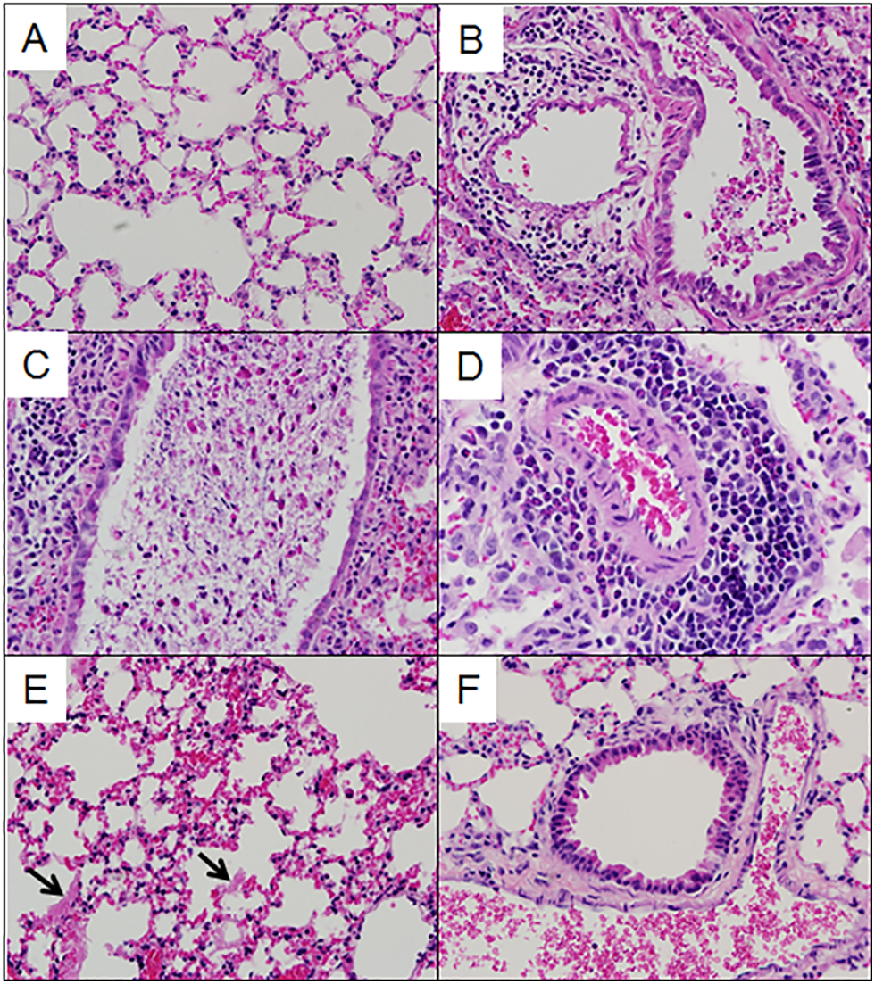 Lung pathology in select preCC mice.