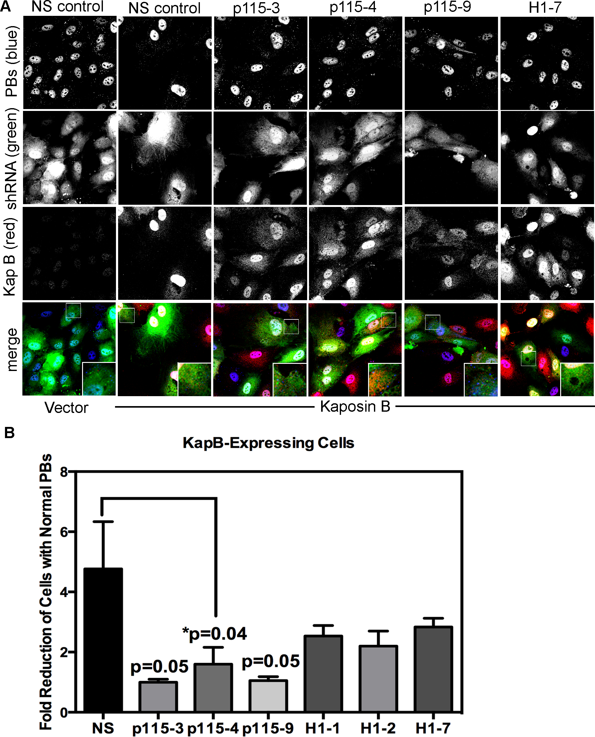 Knockdown of the Rho guanine exchange factor (GEF) p115 prevents KapB-induced modification of p-body dynamics.