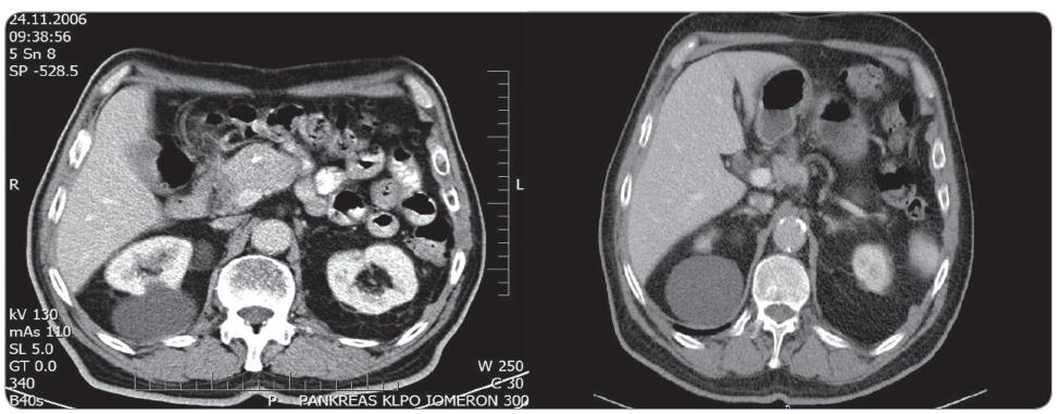 Obr. 6a. Předoperační kontrastní CT pankreatu (portální fáze) zobrazující hyperdenzní nádor hlavy pankreatu naléhající na VMS. Obr. 6b. Kontrastní CT pankreatu (portální fáze) 3 roky po RFA zobrazující mírnou regresi kaudální porce nádoru.