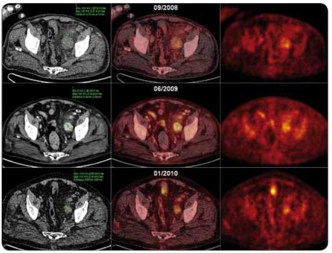 CT, fúzní PET /CT a PET axiální řezy nad úrovní stropu levého acetabula u pacienta s plazmocelulární multicentrickou Castlemanovou chorobou ukazující léčebný efekt režimu s thalidomidem. 09/2008, PET/low dose CT, vstupní vyšetření: zvětšená uzlina dorzálně od a. et v. iliaca externa vlevo (48 mm v maximálním příčném průměru) se zvýšenou akumulací radiofarmaka (SUV<sub>max</sub> = 4,21) 06/2009, PET/high dose CT, po 3 cyklech léčby: zvětšená uzlina dorzálně od a. et v. iliaca externa vlevo (35 mm v maximálním příčném průměru, postkontrastní denzita uzliny 180 HU) se zvýšenou akumulací radiofarmaka (SUV<sub>max</sub> = 4,16). 01/2010, PET/low dose CT, po 9 cyklech léčby: zvětšená uzlina dorzálně od a. et v. iliaca externa vlevo (30 mm v maximálním příčném průměru) se zvýšenou akumulací FDG (SUV<sub>max</sub> = 3,76).