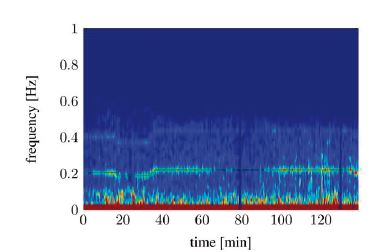 Spectral signal representation of the heart rate variability trough short time Fourier transforms (tA10).