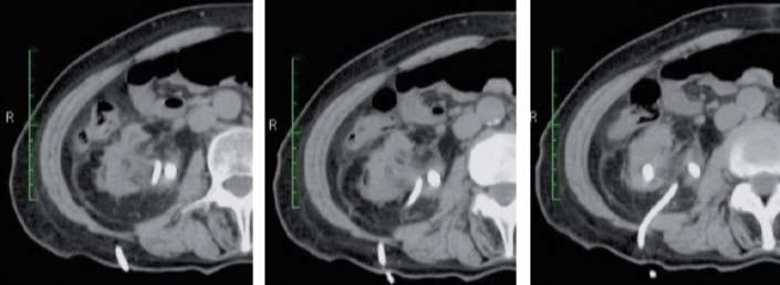 Nefrostomie byla zavedena přímo do ledvinné pánvičky. Kolem renálního hilu je patrná závažná zánětlivá změna.