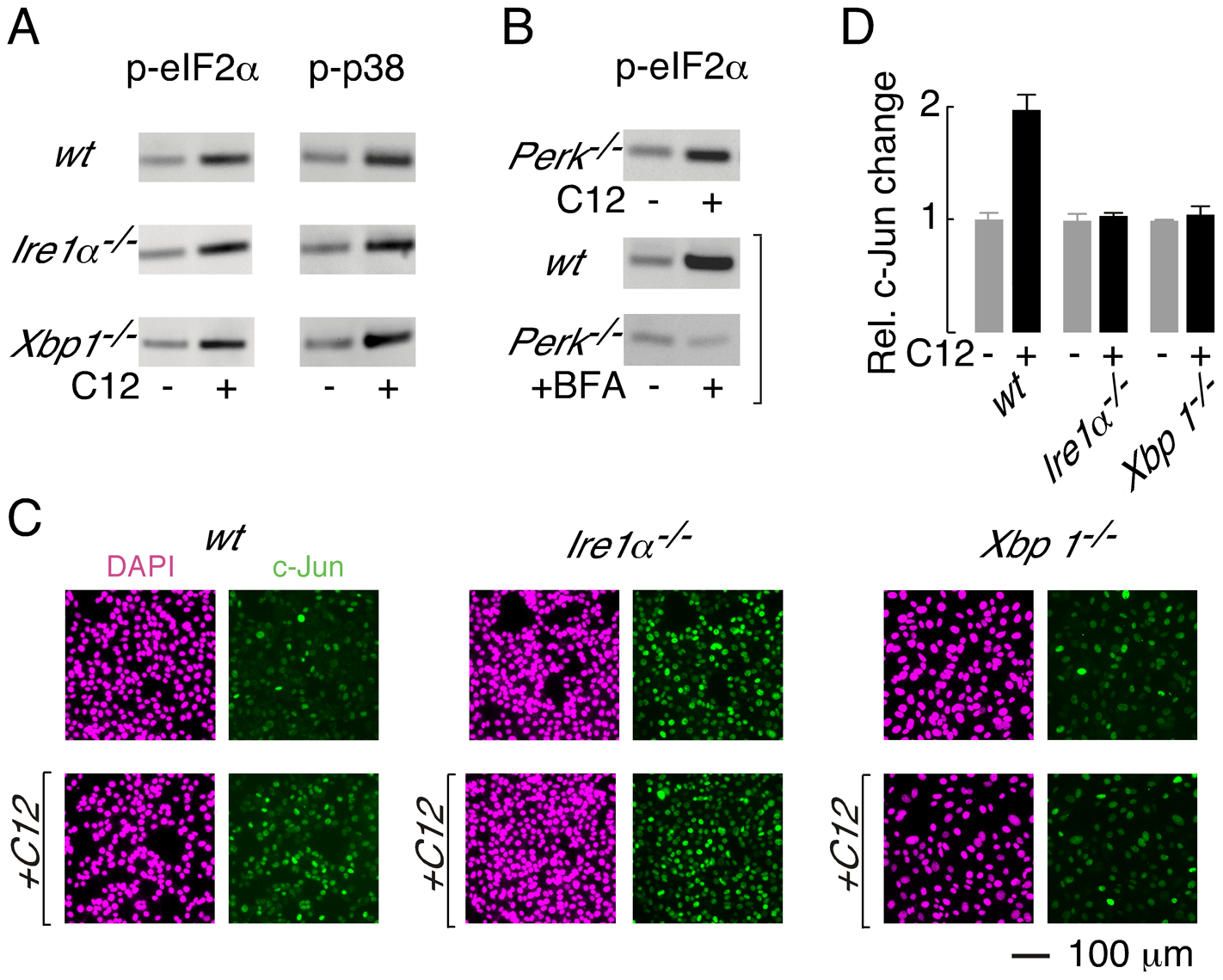 XBP1-independent cellular responses to C12.