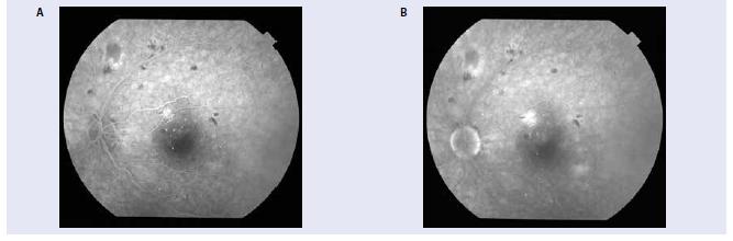 FAG závažnej NPDR s hyperfluorescenciou z presakovania z mikroaneuryziem v makule.