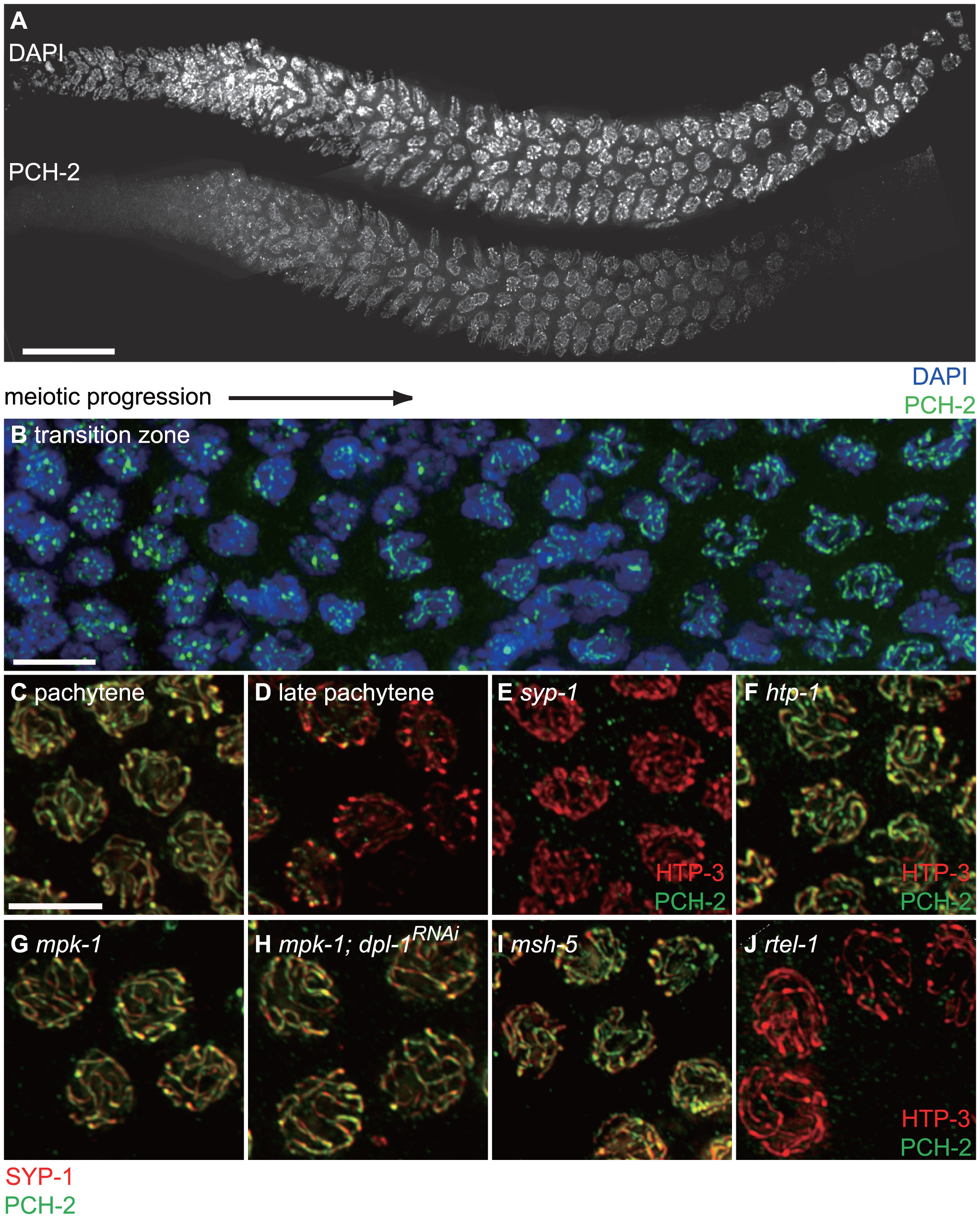 PCH-2 localizes to the SC when inter-homolog DNA repair mechanisms are active.