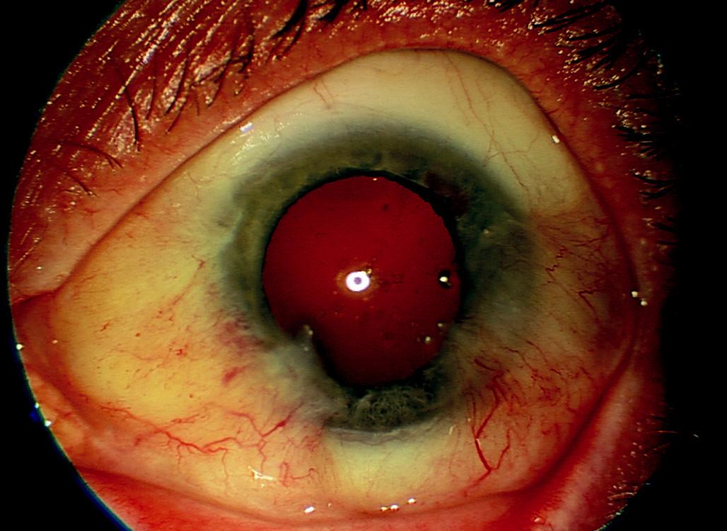 Levé oko – recidiva po 5 operacích