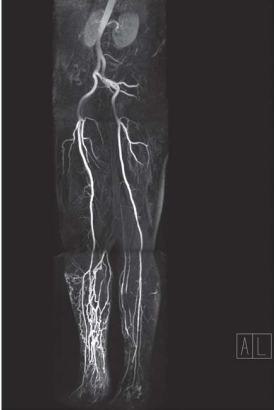 Obr. 1.2. CEMRA aorty a artérií oboch dolných končatín, ten istý pacient ako na obr. 1.1  (Vyšetrenie uskutočnil a záznam poskytol MUDr. Jaromír Fabčin, Medicentrum Ružomberok)