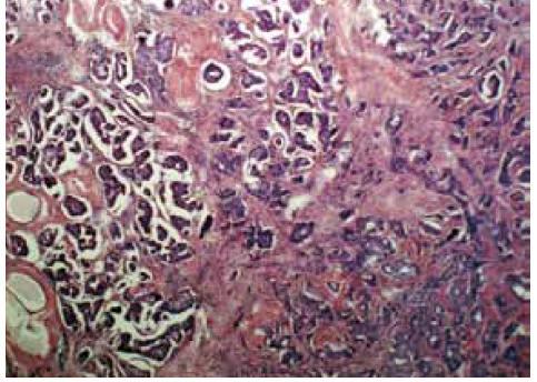 Invazivní mikropapilární karcinom, HE, zvětšeno 40×