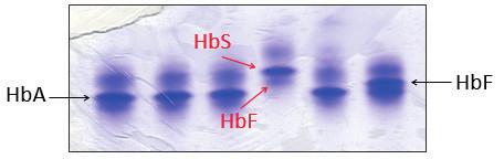 Detekce HbS proteinovou elektroforézou na polyakrylamidovém gelu barveném Coomasie blue. Červené šipky označují frakce HbS a HbF jako jediné hemoglobiny u pacienta se srpkovitou anémií, což odpovídalo zjištěnému genotypu pacienta. (Hemato-onkologická klinika, FN a LF Univerzity Palackého v Olomouci) Fig. 5. Detection of HbS by protein electrophoresis on polyacrylamid gel stained with Coomasie blue. Red arrows indicate the HbS and HbF fractions as the only hemoglobins in a patient with sickle cell disease, which corresponds with patient's genotype.
