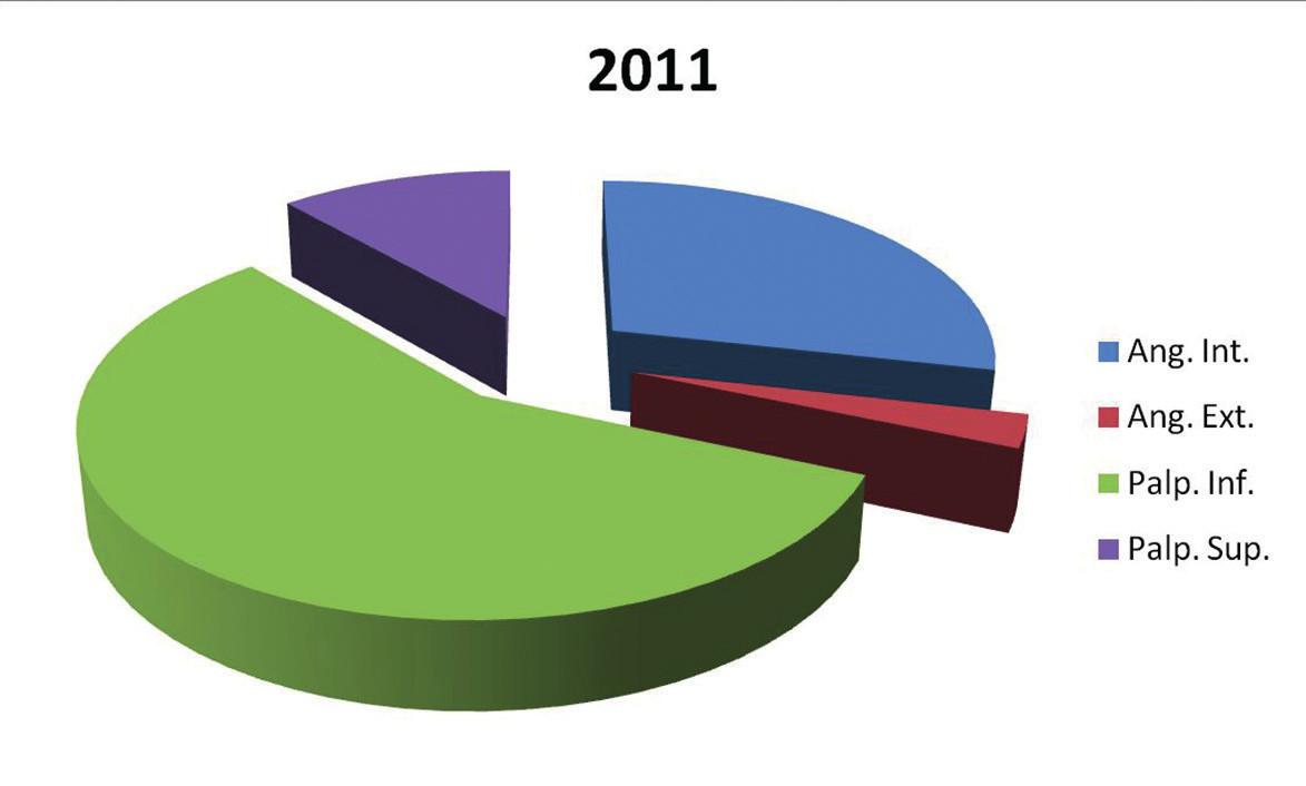 Prehľad lokalizácie u pacientov s bazocelulárnym karcinómom na Klinike oftalmológie LF UK  a UNB v Bratislave v roku 2011