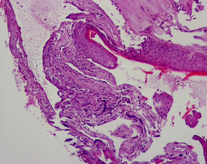 Časť matrix, v jej okolí výraznejšia chronická zápalová celulizácia, ktorá má už fibroproduktívny charakter.