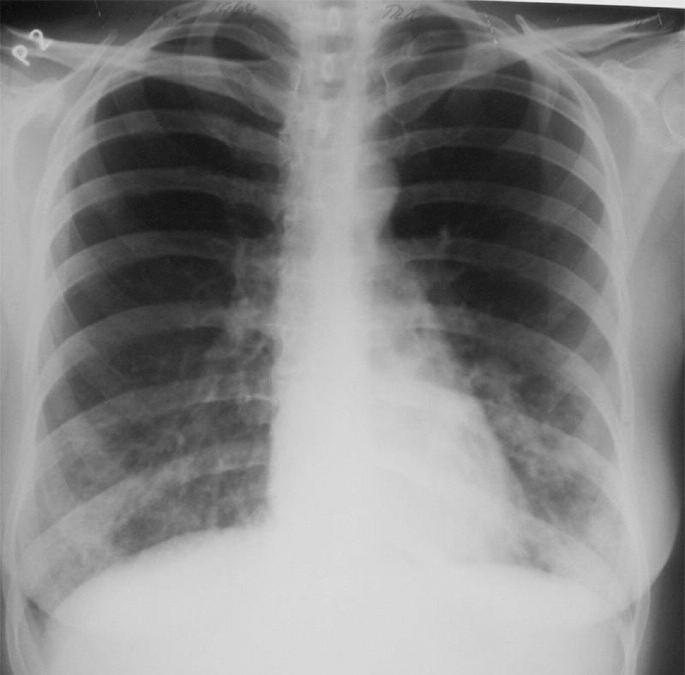 Primární infekce Chlamydií pneumoniae u mladé pacientky – diseminace drobných, střednû sytých stínů v dolních třetinách obou plicních polí.