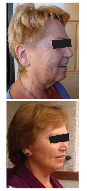 Facelifting u pětašedesátileté ženy Fig. 3: Facelift in a 65 years old female