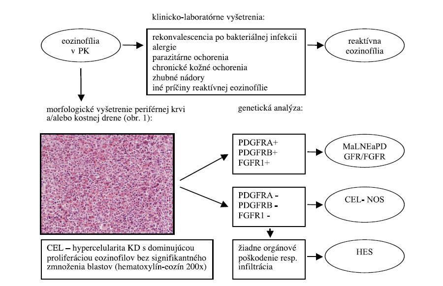 Schéma 1. Diferenciálne – diagnostický algoritmus eozinofílie v PK podľa WHO klasifikácie 2008.