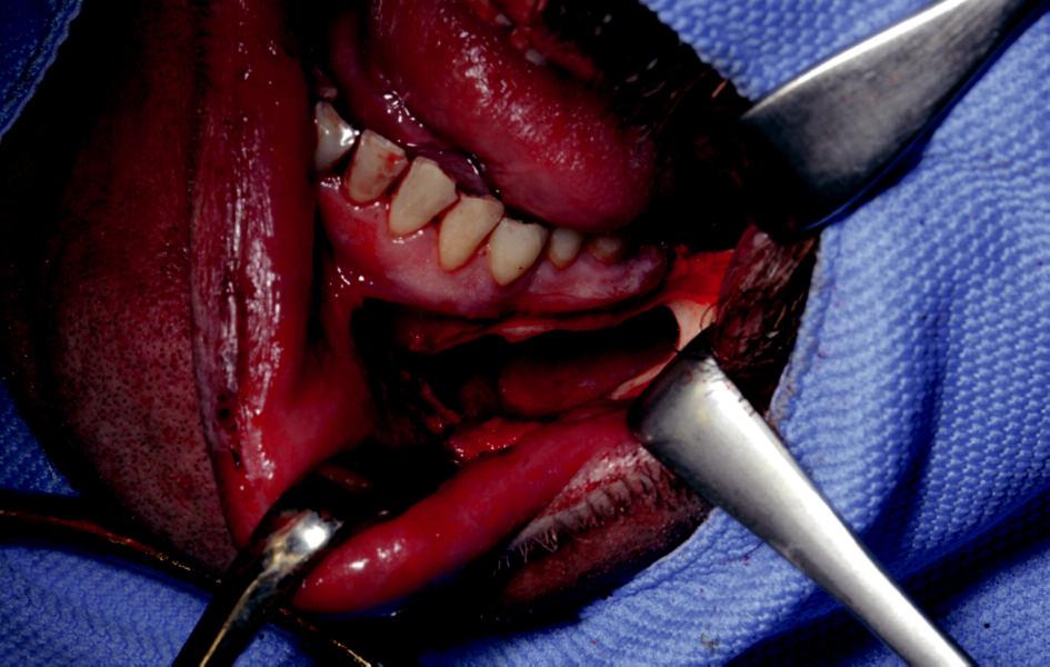 Patologická kostní dutina po exstirpaci odontogenní cysty.