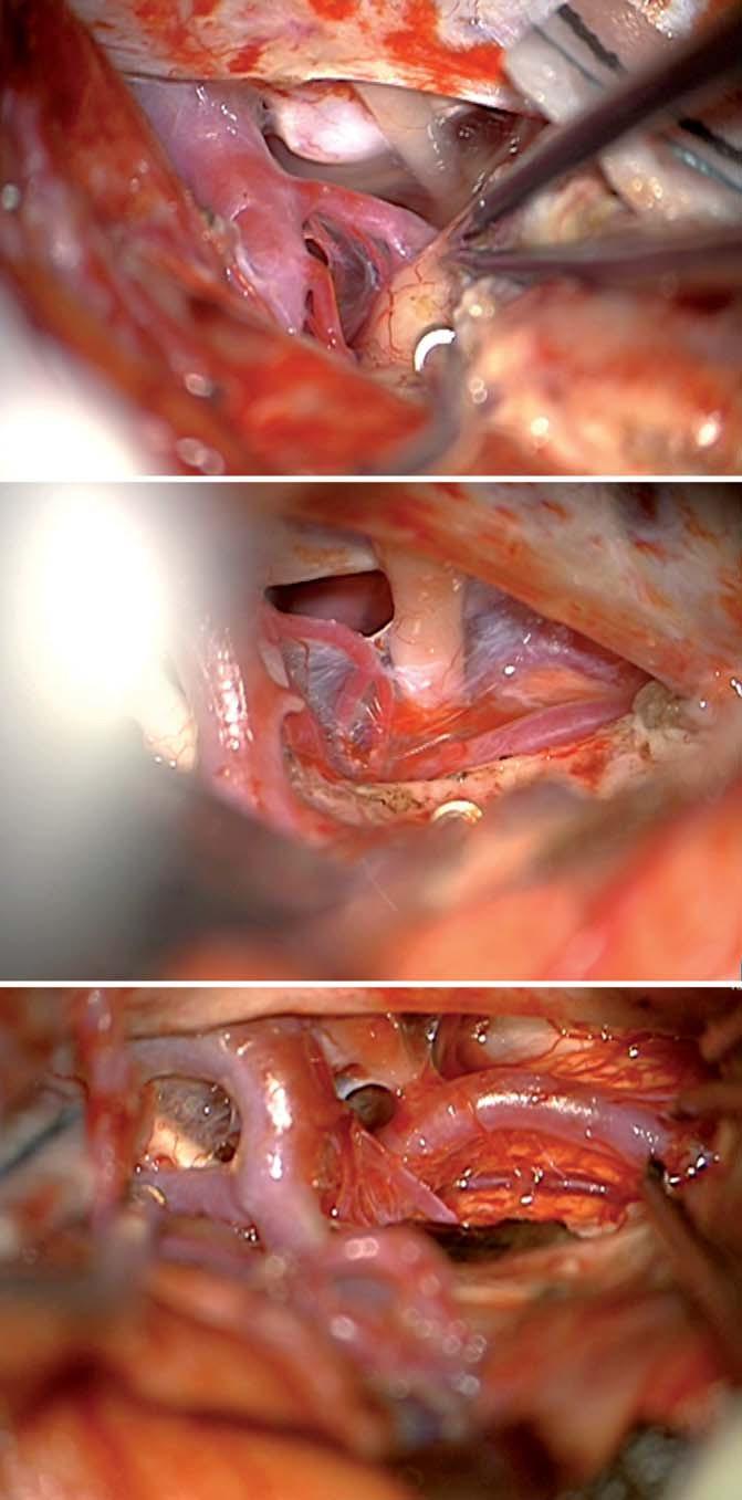 Přední transsylvijský přístup s anteromediální temporální lobektomií. Fig. 3. Frontal trans-sylvian access to the anteromedial temporal lobectomy procedure.
