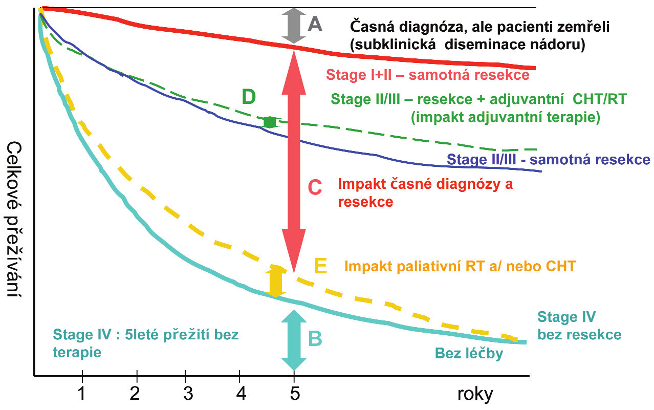 Komplexní analýza modelu celkového přežití dle stupně a dopadu léčebných modalit