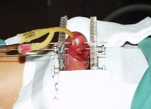 Intersticiální HDR–brachyterapie.