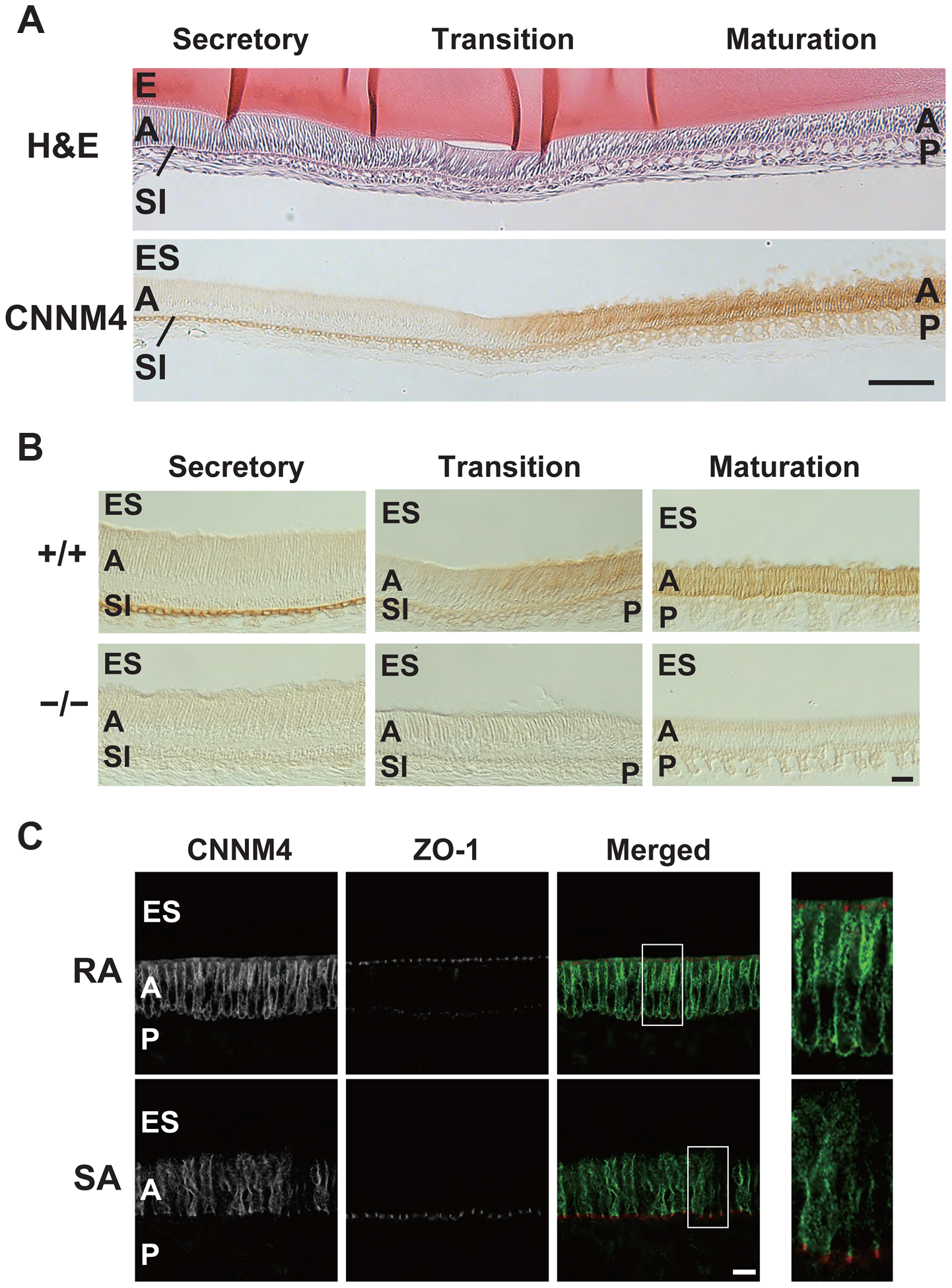 Basolateral localization of CNNM4 in the ameloblasts.