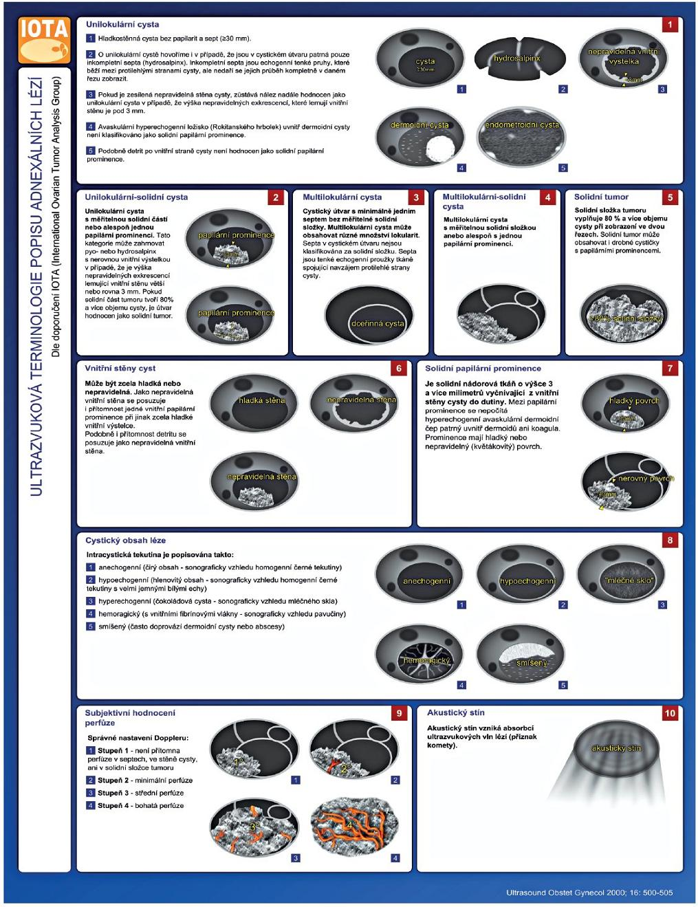 Schéma 1 Ultrazvuková terminologie popisu adnexálních lézí