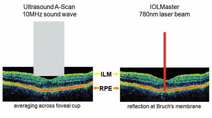 Různá místa odrazu optického a ultrazvukového signálu od struktur sítnice (z obrazových materiálů firmy Zeiss).