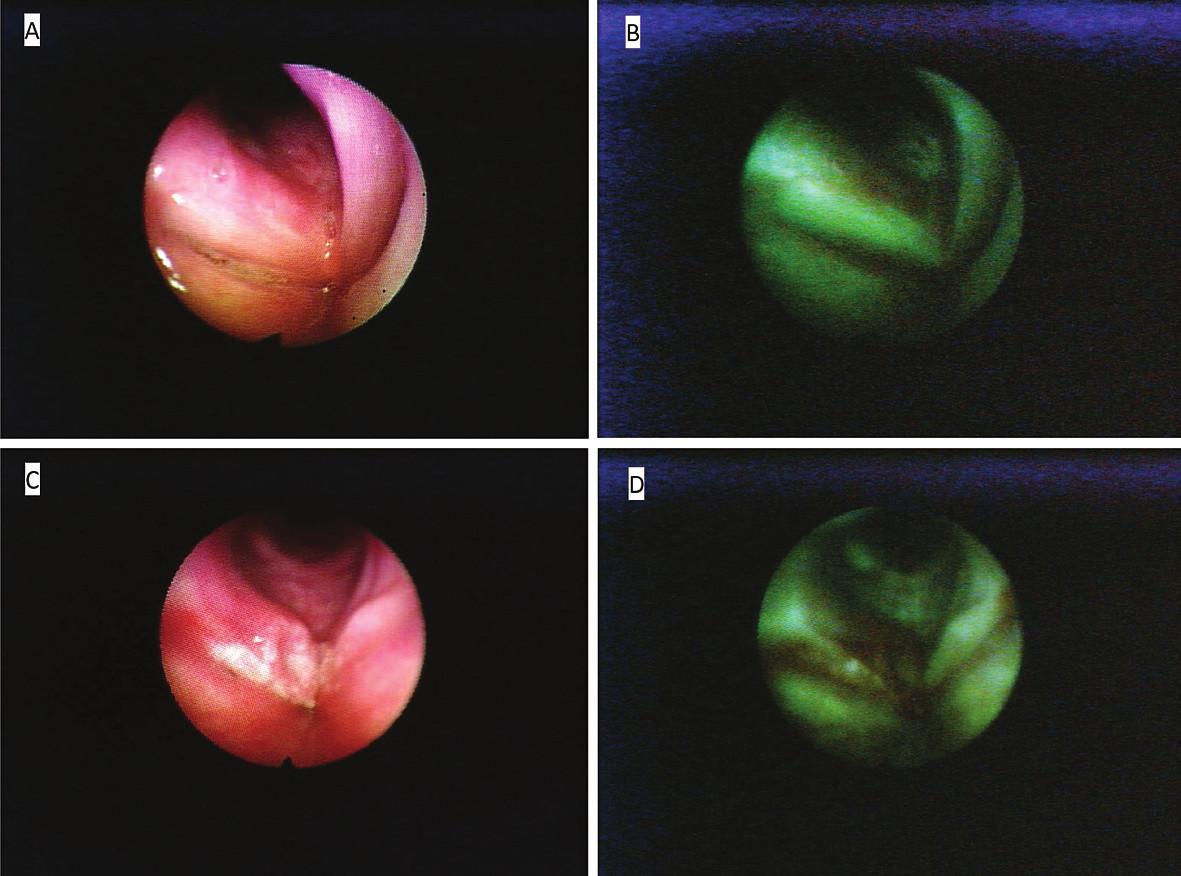Figs. 1 Basic AF images of endoscopic examination of larynx (DAFE).