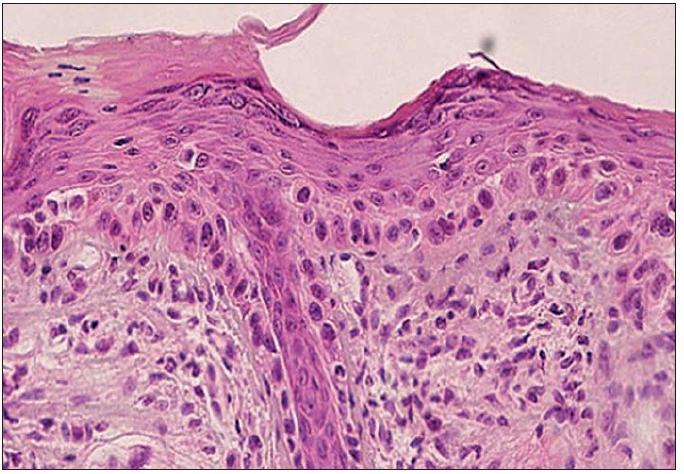 Atrofický typ AK – atroficky zmenená epiderma s fokálnou nevýraznou hyperkeratózou na povrchu. Atypické keratinocyty postihujú štruktúry vlasového folikulu (H&E, 400x).